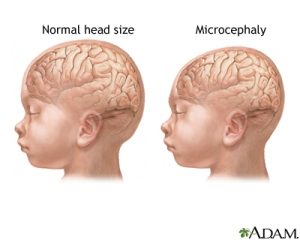 Gambaran kepala bayi normal & mikrosefali [sumber: nlm.nih.gov]